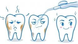 泸州洗牙洁牙